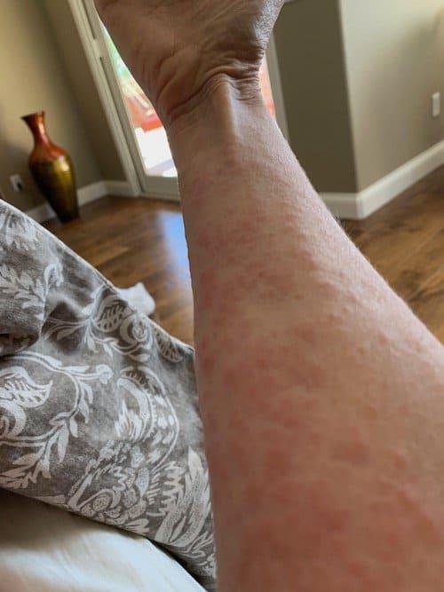 Covid-19 hive-like skin rash on my arms.