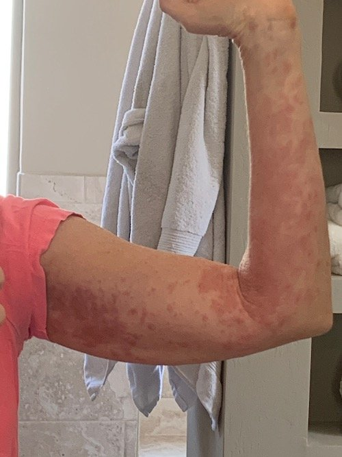 covid-19 skin rash on my arms